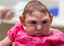 """ظهور فيروس """"زيكا"""" جمهورية الرأس الأخضر منظمة الصحة العالمية، تدعوا إلى رفع مستوى التواصل."""